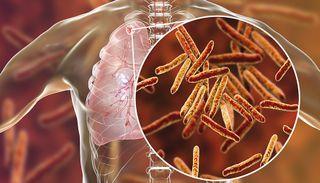 હજુ પણ ઘાતક ટીબીથી રોજના 14નાં મોત, કેન્સરથી 3, એઇડ્સથી 2નાં મૃત્યુ