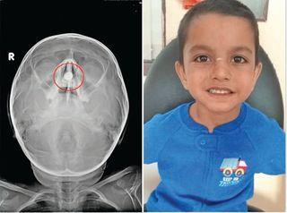 રાજકોટમાં બાળકના નાકમાં પાંચ મહિનાથી ફસાયેલો બેટરીનો સેલ ઓપરેશનથી બહાર કઢાયો