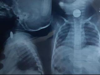 સુરતમાં એક વર્ષના બાળકના ગળામાંથી સિવિલ હોસ્પિટલના તબીબોએ બટન સેલ બહાર કાઢ્યો